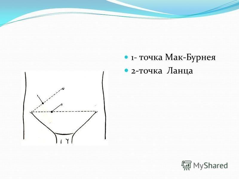 1- точка Мак-Бурнея 2-точка Ланца