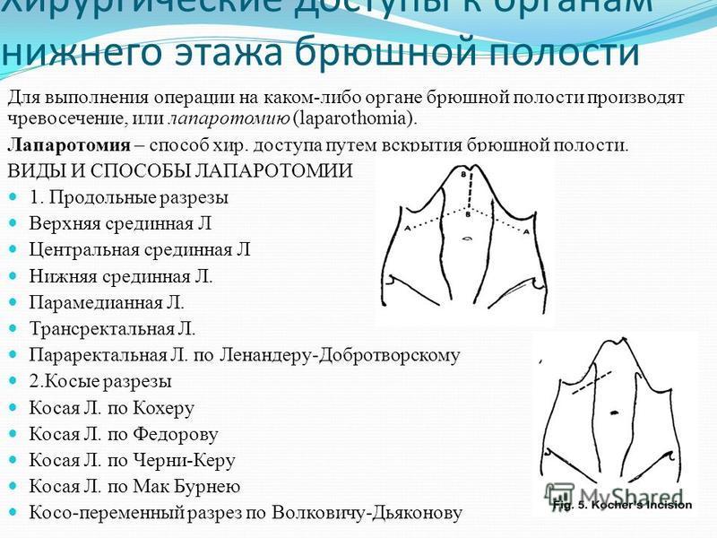 Хирургические доступы к органам нижнего этажа брюшной полости Для выполнения операции на каком-либо органе брюшной полости производят чревосечение, или лапаротомию (laparothomia). Лапаротомия – способ хир. доступа путем вскрытия брюшной полости. ВИДЫ