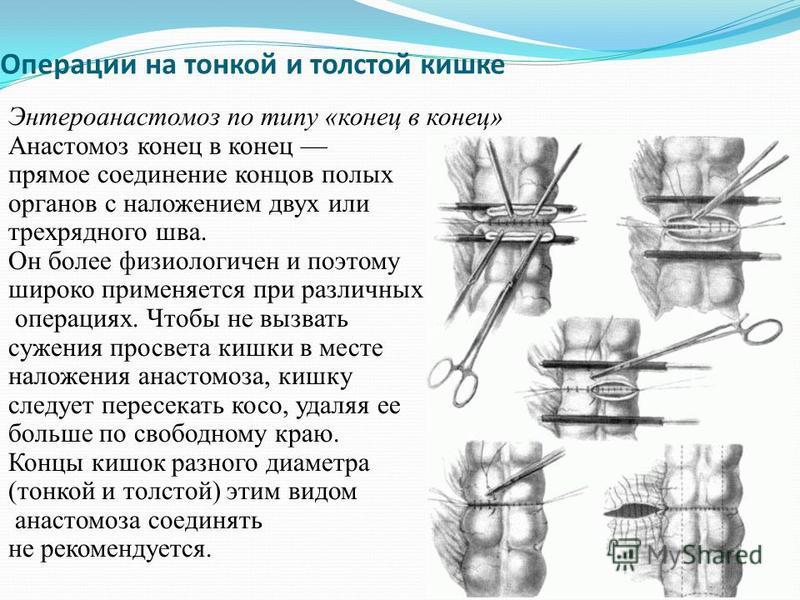 Операции на тонкой и толстой кишке Энтероанастомоз по типу «конец в конец» Анастомоз конец в конец прямое соединение концов полых органов с наложением двух или трехрядного шва. Он более физиологичен и поэтому широко применяется при различных операция