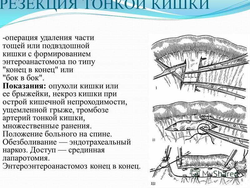 РЕЗЕКЦИЯ ТОНКОЙ КИШКИ -операция удаления части тощей или подвздошной кишки с формированием энтероанастомоза по типу