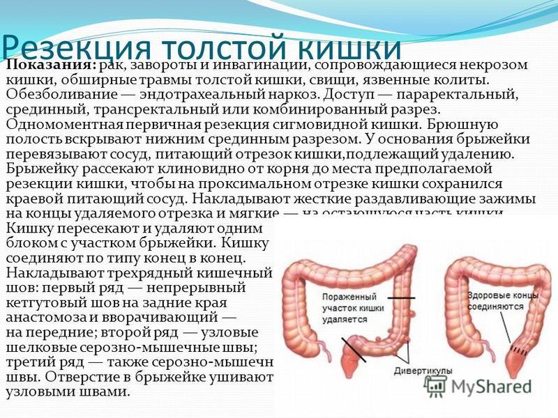 Резекция толстой кишки Показания: рак, завороты и инвагинации, сопровождающиеся некрозом кишки, обширные травмы толстой кишки, свищи, язвенные колиты. Обезболивание эндотрахеальный наркоз. Доступ параректальный, срединный, трансректальный или комбини
