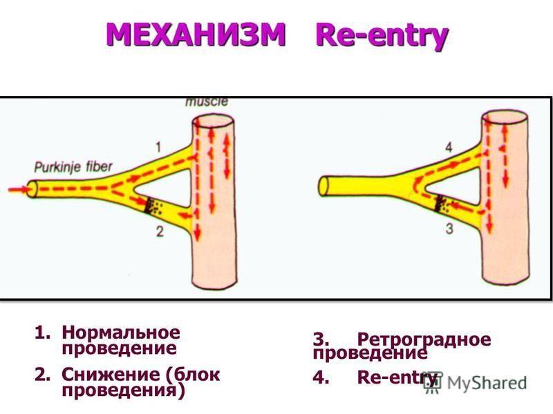 МЕХАНИЗМ Re-entry 1. Нормальное проведение 2. Снижение (блок проведения) 3. Ретроградное проведение 4. Re-entry