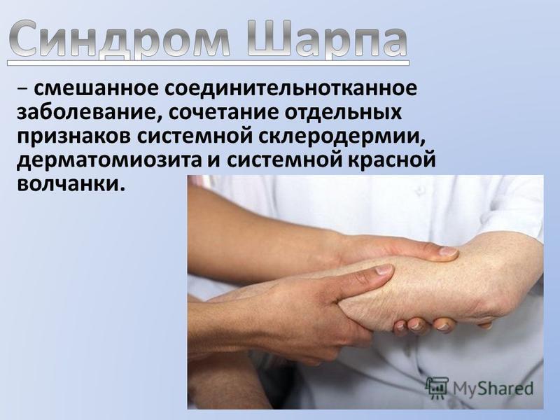 смешанное соединительнотканное заболевание, сочетание отдельных признаков системной склеродермии, дерматомиозита и системной красной волчанки.