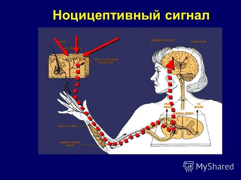 Ноцицептивный сигнал