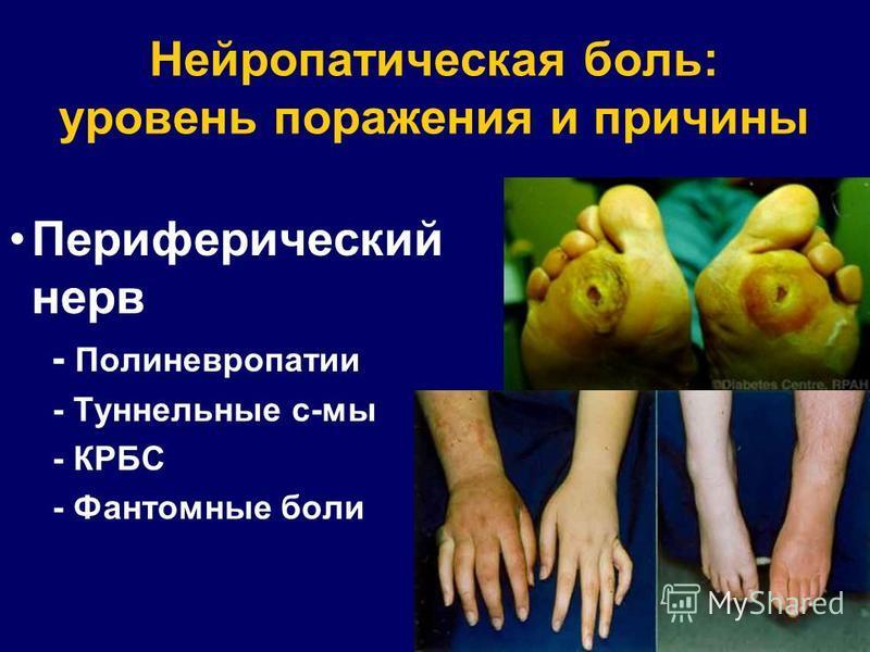 Нейропатическая боль: уровень поражения и причины Периферический нерв - Полиневропатии - Туннельные с-мы - КРБС - Фантомные боли
