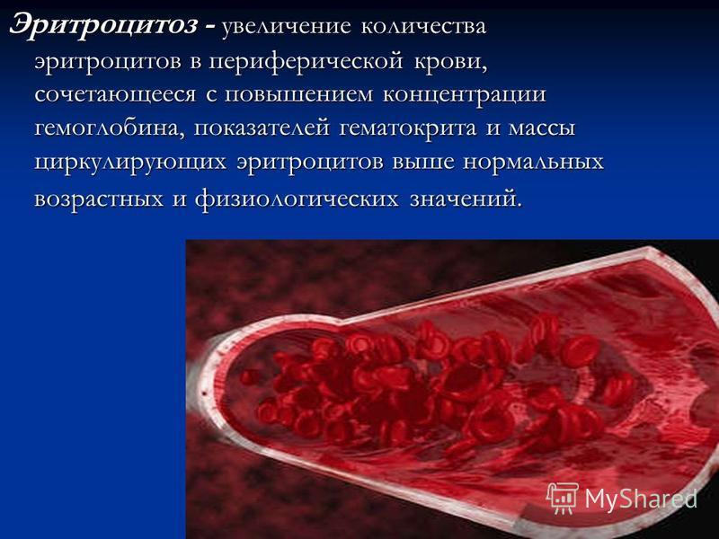Эритроцитоз - увеличение количества эритроцитов в периферической крови, сочетающееся с повышением концентрации гемоглобина, показателей гематокрита и массы циркулирующих эритроцитов выше нормальных возрастных и физиологических значений.