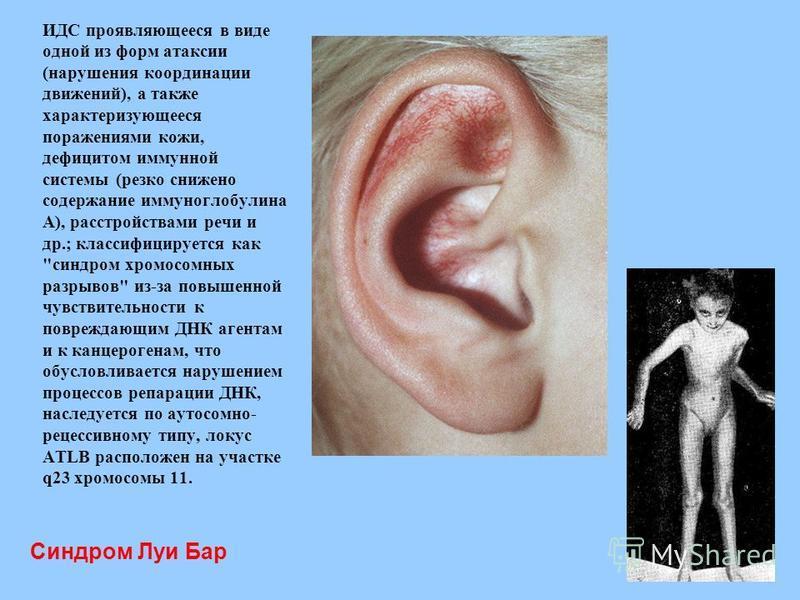 Синдром Луи Бар ИДС проявляющееся в виде одной из форм атаксии (нарушения координации движений), а также характеризующееся поражениями кожи, дефицитом иммунной системы (резко снижено содержание иммуноглобулина А), расстройствами речи и др.; классифиц