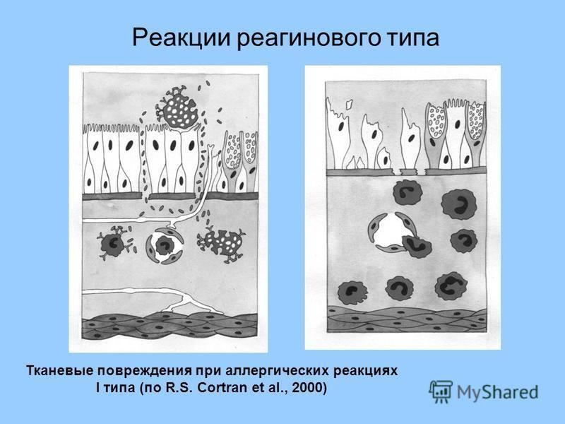 Реакции реагинового типа Тканевые повреждения при аллергических реакциях I типа (по R.S. Cortran et al., 2000)
