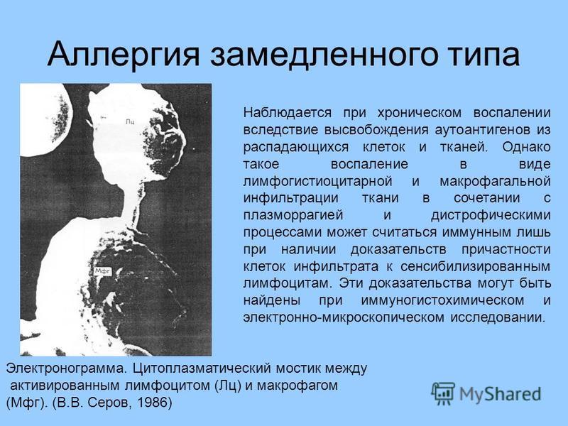 Аллергия замедленного типа Электронограмма. Цитоплазматический мостик между активированным лимфоцитом (Лц) и макрофагом (Мфг). (В.В. Серов, 1986) Наблюдается при хроническом воспалении вследствие высвобождения аутоантигенов из распадающихся клеток и