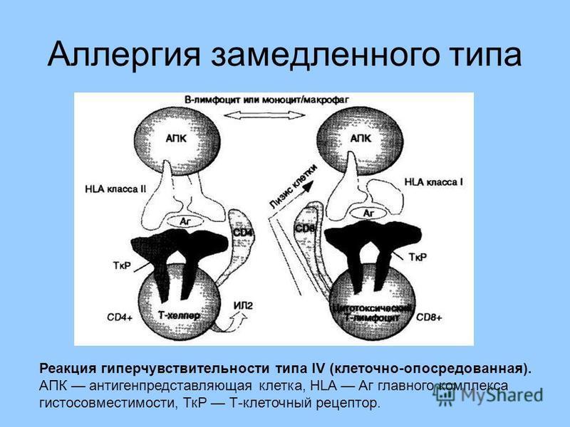 Аллергия замедленного типа Реакция гиперчувствительности типа IV (клеточно-опосредованная). АПК антигенпредставляющая клетка, HLA Аг главного комплекса гистосовместимости, ТкР Т-клеточный рецептор.