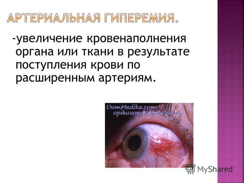 -увеличение кровенаполнения органа или ткани в результате поступления крови по расширенным артериям.