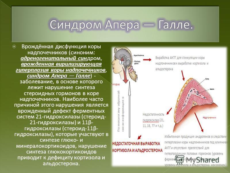 синдром Апера Галле Врождённая дисфункция коры надпочечников (синоним: адреногенитальный синдром, врожденная вирилизирующая гиперплазия коры надпочечников, синдром Апера Галле) - заболевание, в основе которого лежит нарушение синтеза стероидных гормо