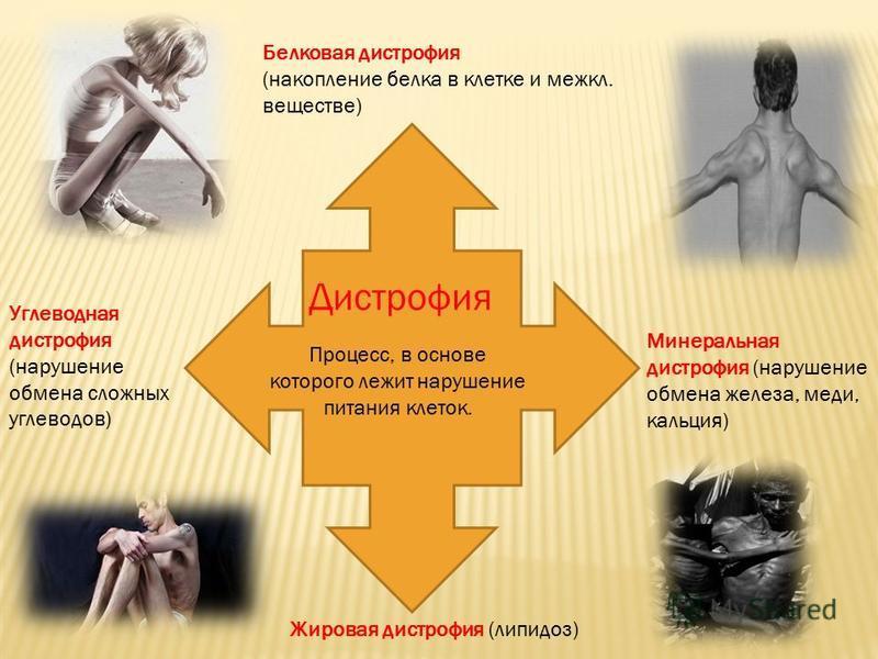 Жировая дистрофия (липидоз) Углеводная дистрофия (нарушение обмена сложных углеводов) Минеральная дистрофия (нарушение обмена железа, меди, кальция) Процесс, в основе которого лежит нарушение питания клеток. Дистрофия Белковая дистрофия (накопление б