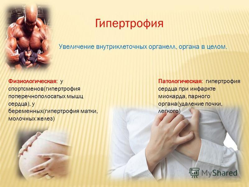 Гипертрофия Увеличение внутриклеточных органелл, органа в целом. Физиологическая: у спортсменов(гипертрофия поперечнополосатых мышц сердца), у беременных(гипертрофия матки, молочных желез) Патологическая: гипертрофия сердца при инфаркте миокарда, пар