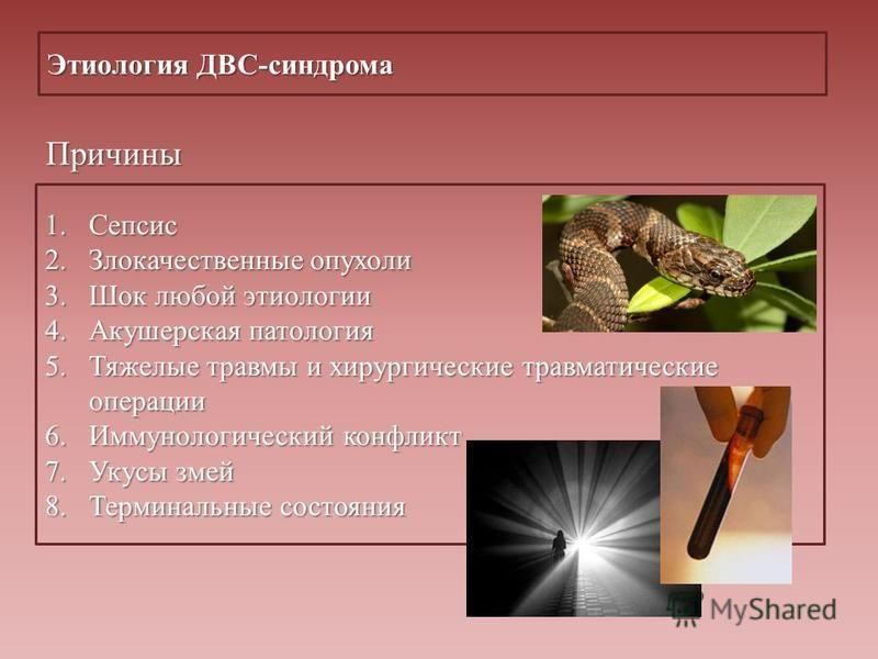 Этиология ДВС-синдрома Причины 1. Сепсис 2. Злокачественные опухоли 3. Шок любой этиологии 4. Акушерская патология 5. Тяжелые травмы и хирургические травматические операции 6. Иммунологический конфликт 7. Укусы змей 8. Терминальные состояния