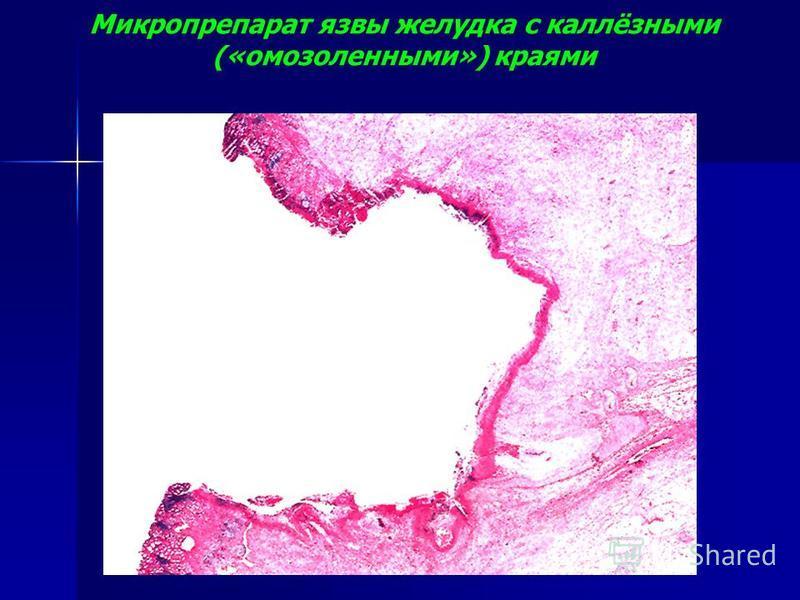 Микропрепарат язвы желудка с каллёзными («мозоленными») краями
