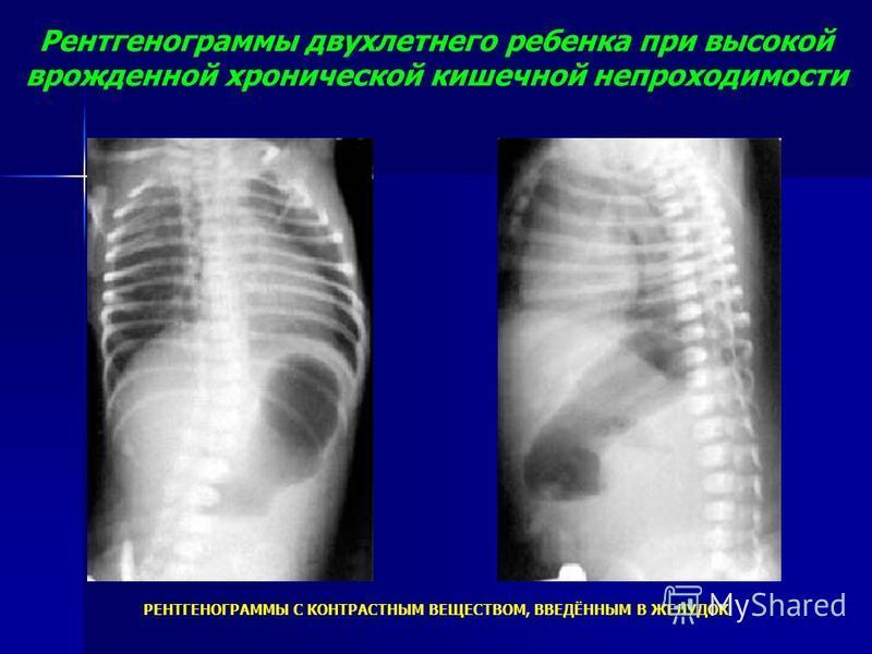 Рентгенограммы двухлетнего ребенка при высокой врожденной хронической кишечной непроходимости РЕНТГЕНОГРАММЫ С КОНТРАСТНЫМ ВЕЩЕСТВОМ, ВВЕДЁННЫМ В ЖЕЛУДОК