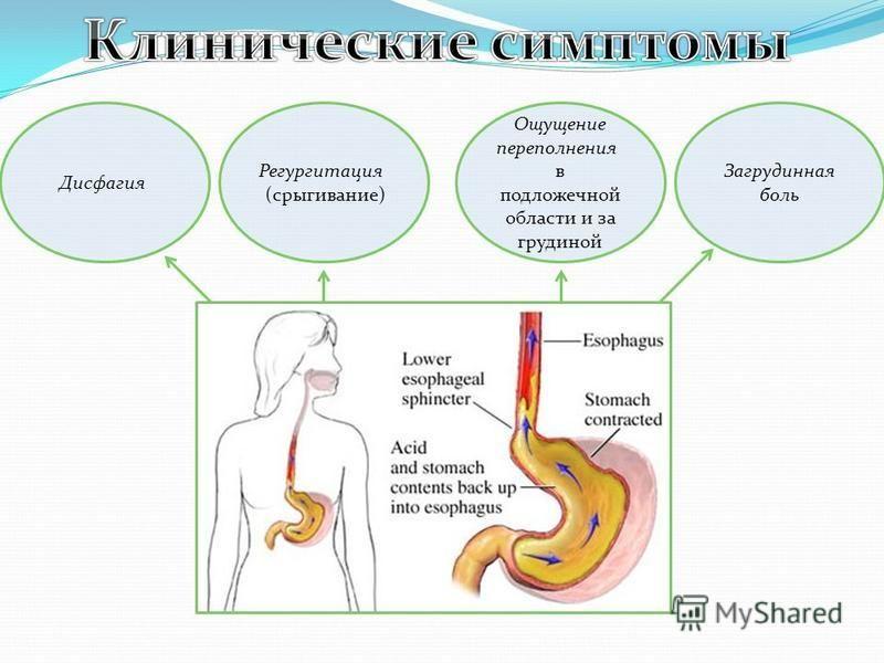 Регургитация (срыгивание) Дисфагия Ощущение переполнения в подложечной области и за грудиной Загрудинная боль