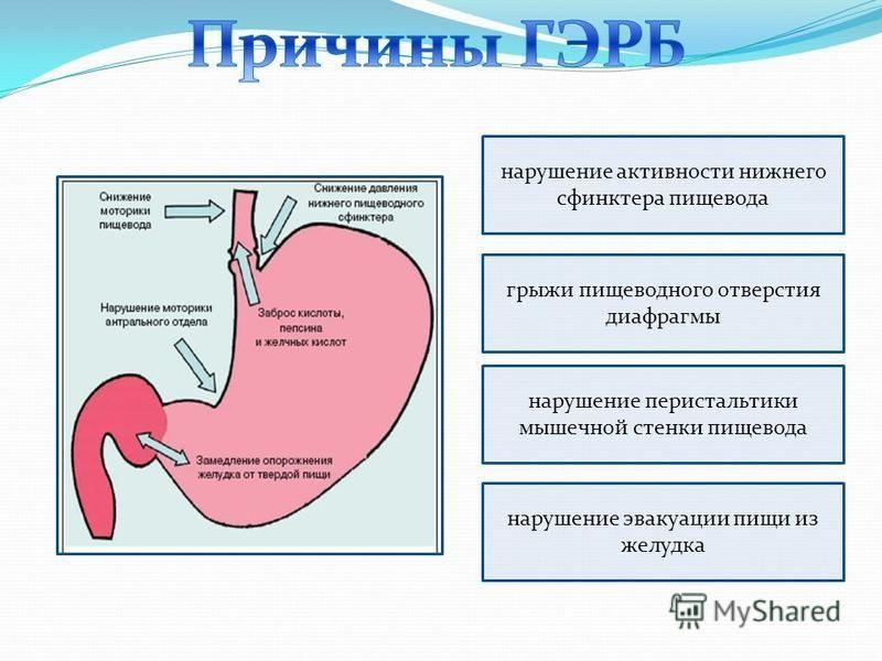 нарушение активности нижнего сфинктера пищевода грыжи пищеводного отверстия диафрагмы нарушение перистальтики мышечной стенки пищевода нарушение эвакуации пищи из желудка