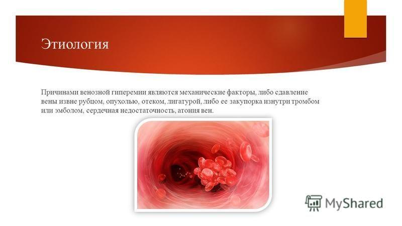 Этиология Причинами венозной гиперемии являются механические факторы, либо сдавление вены извне рубцом, опухолью, отеком, лигатурой, либо ее закупорка изнутри тромбом или эмболом, сердечная недостаточность, атония вен.
