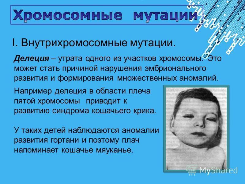 Powerpoint Templates Page 28 I. Внутрихромосомные мутации. Делеция – утрата одного из участков хромосомы. Это может стать причиной нарушения эмбрионального развития и формирования множественных аномалий. Например делеция в области плеча пятой хромосо