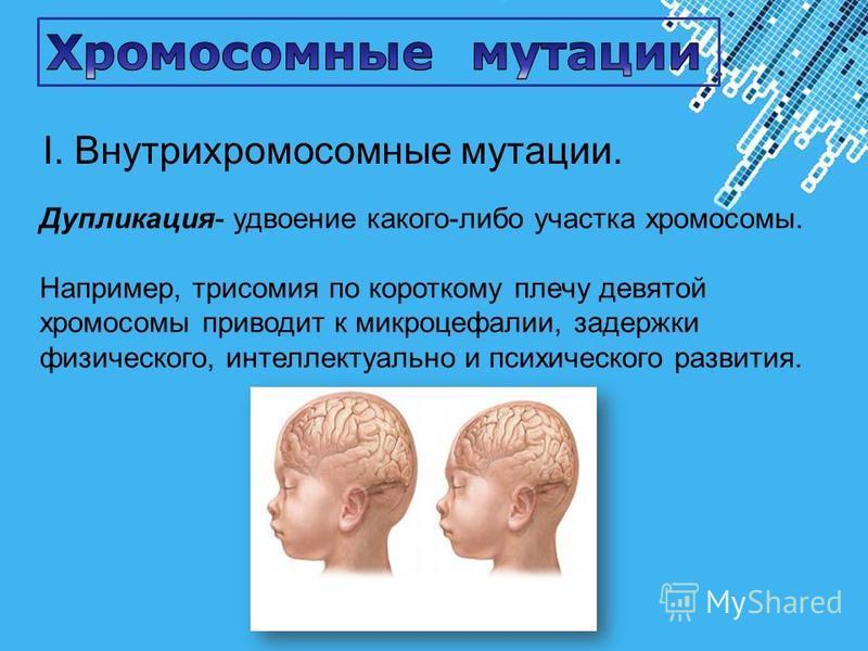 Powerpoint Templates Page 29 Дупликация- удвоение какого-либо участка хромосомы. Например, трисомия по короткому плечу девятой хромосомы приводит к микроцефалии, задержки физического, интеллектуально и психического развития. I. Внутрихромосомные мута