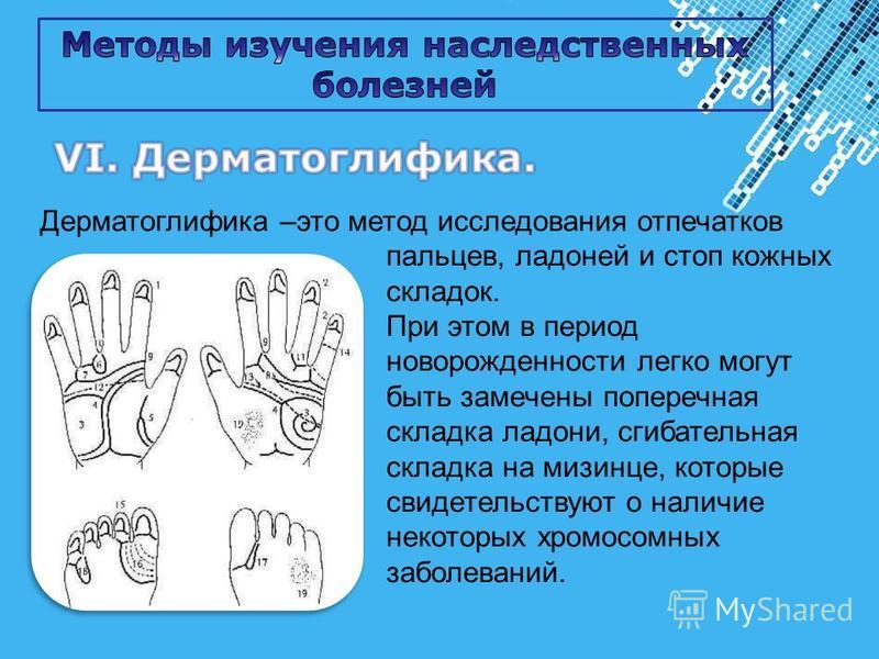 Powerpoint Templates Page 7 Дерматоглифика –это метод исследования отпечатков пальцев, ладоней и стоп кожных складок. При этом в период новорожденности легко могут быть замечены поперечная складка ладони, сгибательная складка на мизинце, которые свид