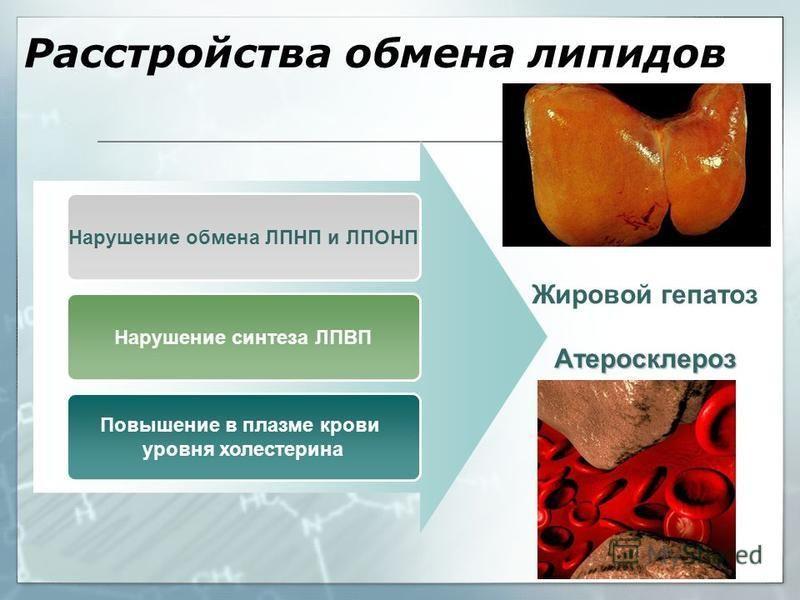 Нарушение обмена ЛПНП и ЛПОНП Нарушение синтеза ЛПВП Повышение в плазме крови уровня холестерина Жировой гепатоз Атеросклероз Расстройства обмена липидов