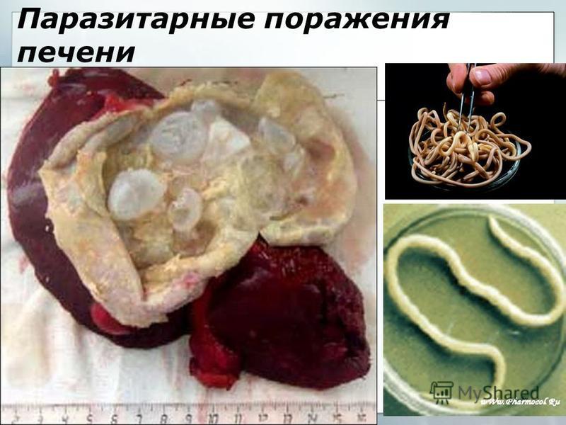 Паразитарные поражения печени
