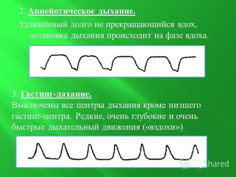 2. Апнейотическое дыхание. Удлинённый долго не прекращающийся вдох, остановка дыхания происходит на фазе вдоха. 3. Гастинг - дыхание. Выключены все центры дыхания кроме низшего кастинг - центра. Редкие, очень глубокие и очень быстрые дыхательный движ