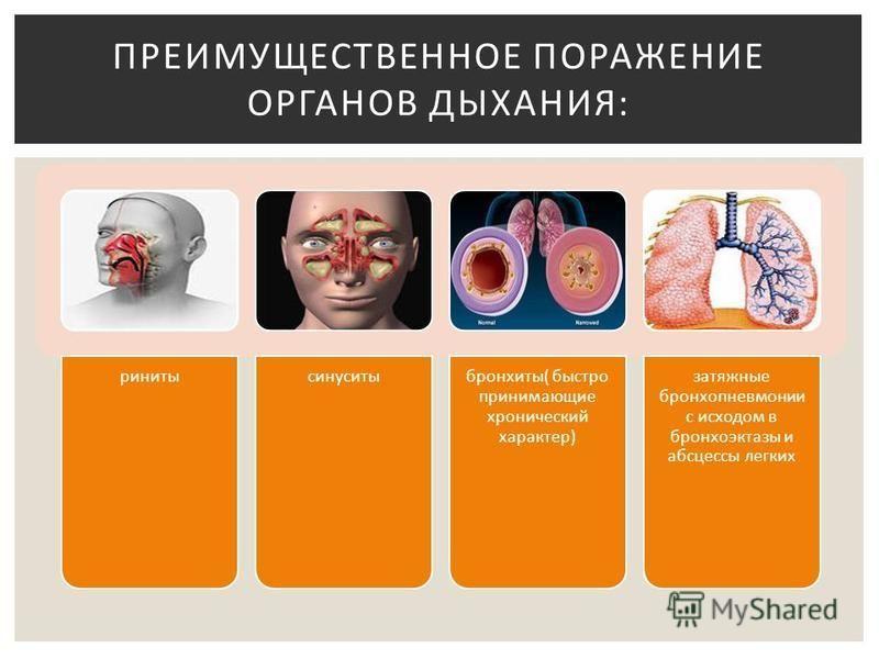 ринитысинуситыбронхиты( быстро принимающие хронический характер) затяжные бронхопневмонии с исходом в бронхоэктазы и абсцессы легких ПРЕИМУЩЕСТВЕННОЕ ПОРАЖЕНИЕ ОРГАНОВ ДЫХАНИЯ: