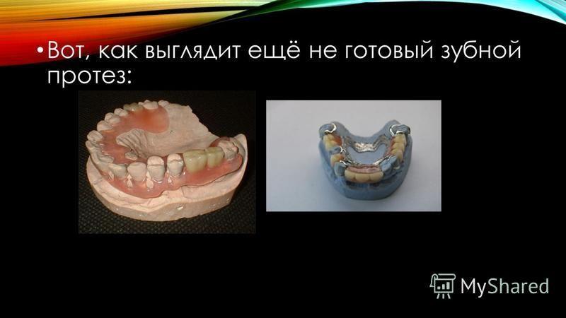 Вот, как выглядит ещё не готовый зубной протез: