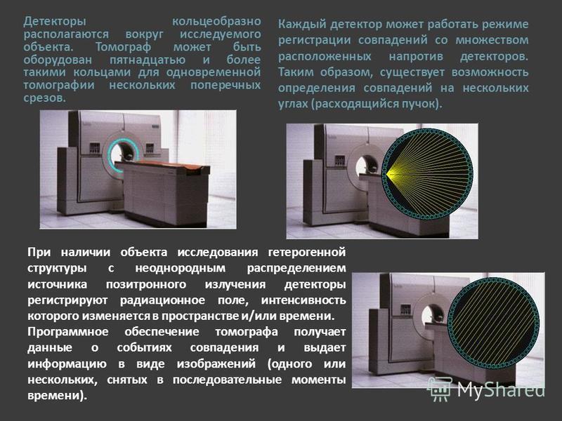 Детекторы кольцеобразно располагаются вокруг исследуемого объекта. Томограф может быть оборудован пятнадцатью и более такими кольцами для одновременной томографии нескольких поперечных срезов. Каждый детектор может работать режиме регистрации совпаде