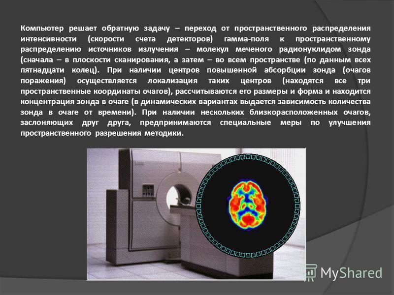 Компьютер решает обратную задачу – переход от пространственного распределения интенсивности (скорости счета детекторов) гамма-поля к пространственному распределению источников излучения – молекул меченого радионуклидом зонда (сначала – в плоскости ск