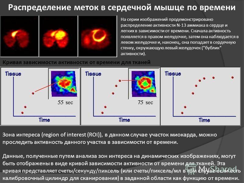 Распределение меток в сердечной мышце по времени На серии изображений продемонстрировано распределение активности N-13 аммиака в сердце и легких в зависимости от времени. Сначала активность появляется в правом желудочке, затем она наблюдается в левом