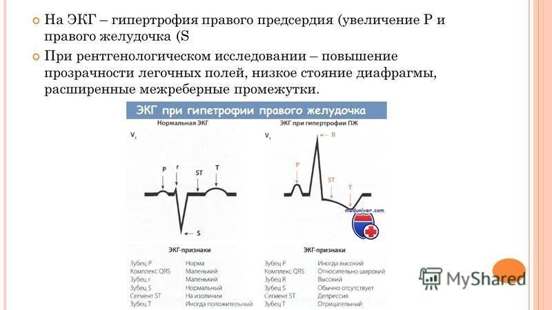 На ЭКГ – гипертрофия правого предсердия (увеличение Р и правого желудочка (S При рентгенологическом исследовании – повышение прозрачности легочных полей, низкое стояние диафрагмы, расширенные межреберные промежутки.