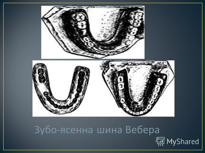Зубо-ясенна шина Вебера