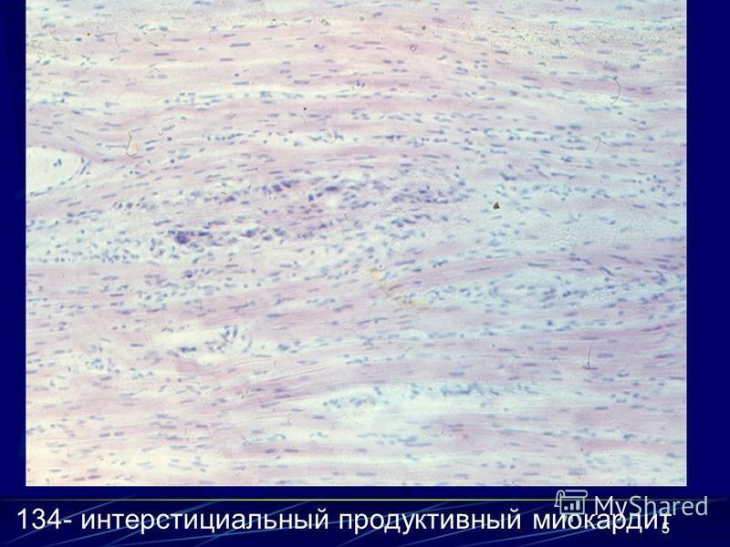 5 134- интерстициальный продуктивный миокардит