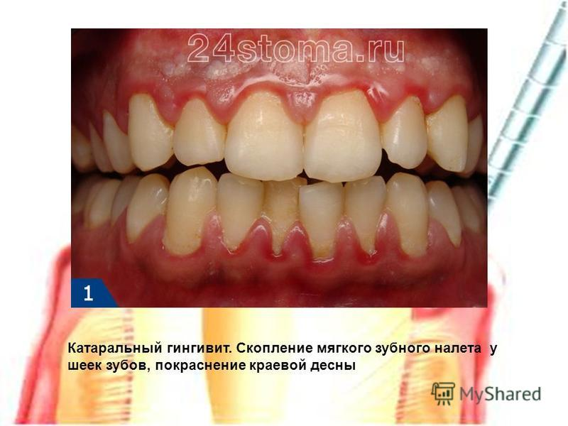 Катаральный гингивит. Скопление мягкого зубного налета у шеек зубов, покраснение краевой десны