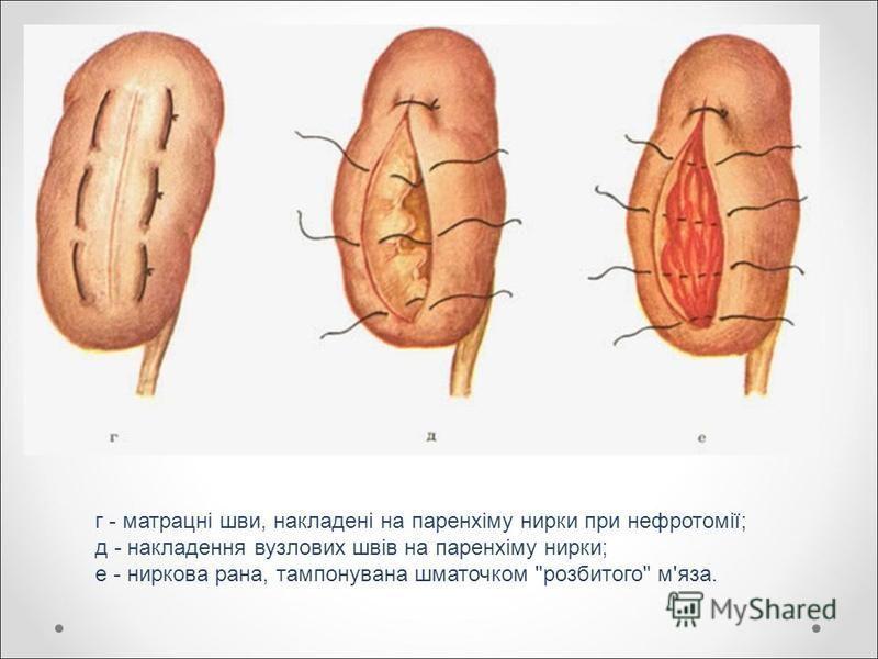 г - матрацні шви, накладені на паренхіму нирки при нефротомії; д - накладення вузлових швів на паренхіму нирки; е - ниркова рана, тампонувана шматочком розбитого м'яза.