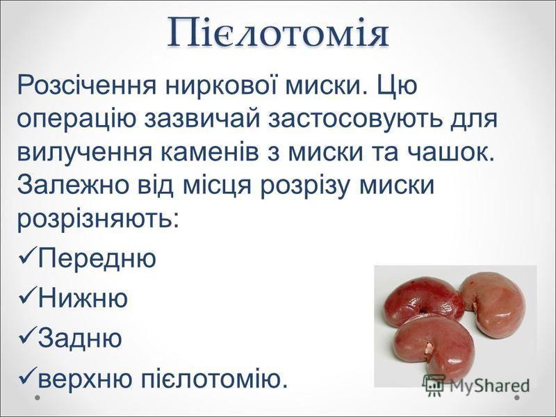 Пієлотомія Розсічення ниркової миски. Цю операцію зазвичай застосовують для вилучення каменів з миски та чашок. Залежно від місця розрізу миски розрізняють: Передню Нижню Задню верхню пієлотомію.