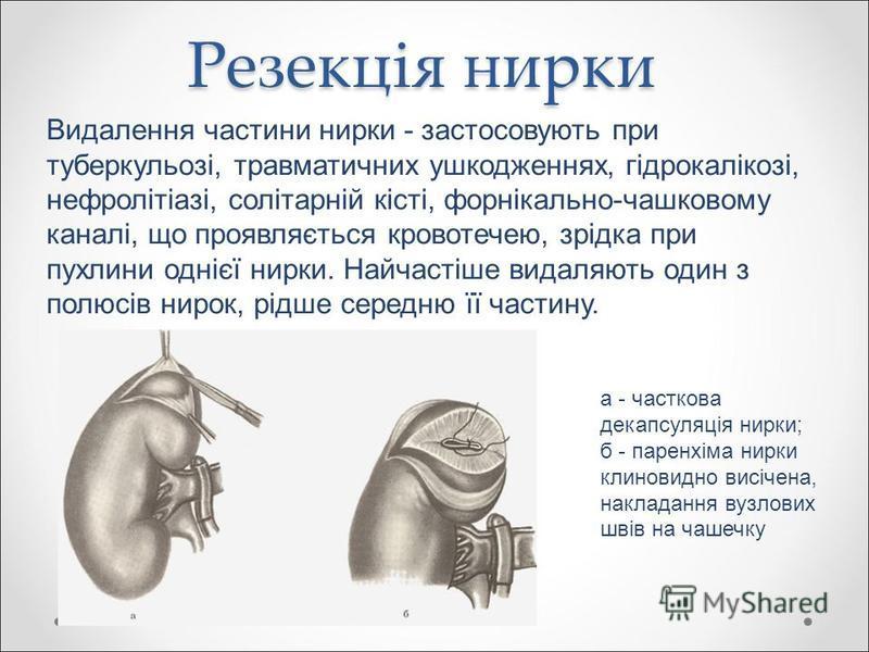 Резекція нирки Видалення частини нирки - застосовують при туберкульозі, травматичних ушкодженнях, гідрокалікозі, нефролітіазі, солітарній кісті, форнікально-чашковому каналі, що проявляється кровотечею, зрідка при пухлини однієї нирки. Найчастіше вид