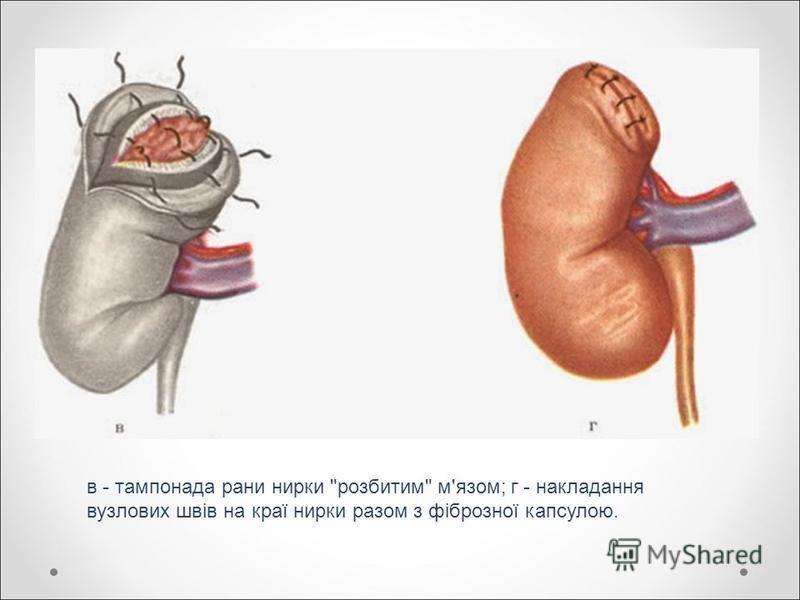 в - тампонада рани нирки розбитим м'язом; г - накладання вузлових швів на краї нирки разом з фіброзної капсулою.