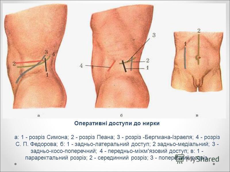 Оперативні доступи до нирки а: 1 - розріз Симона; 2 - розріз Пеана; 3 - розріз -Бергмана-Ізраеля; 4 - розріз С. П. Федорова; б: 1 - задньо-латеральний доступ; 2 задньо-медіальний; 3 - задньо-косо-поперечний; 4 - передньо-міжм'язовий доступ; в: 1 - па