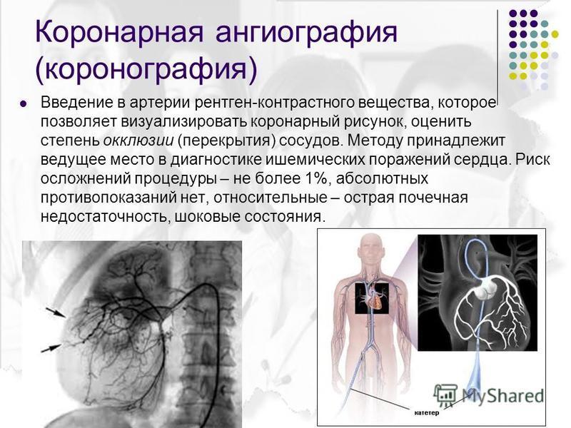 Коронарная ангиография (коронография) Введение в артерии рентген-контрастного вещества, которое позволяет визуализировать коронарный рисунок, оценить степень окклюзии (перекрытия) сосудов. Методу принадлежит ведущее место в диагностике ишемических по