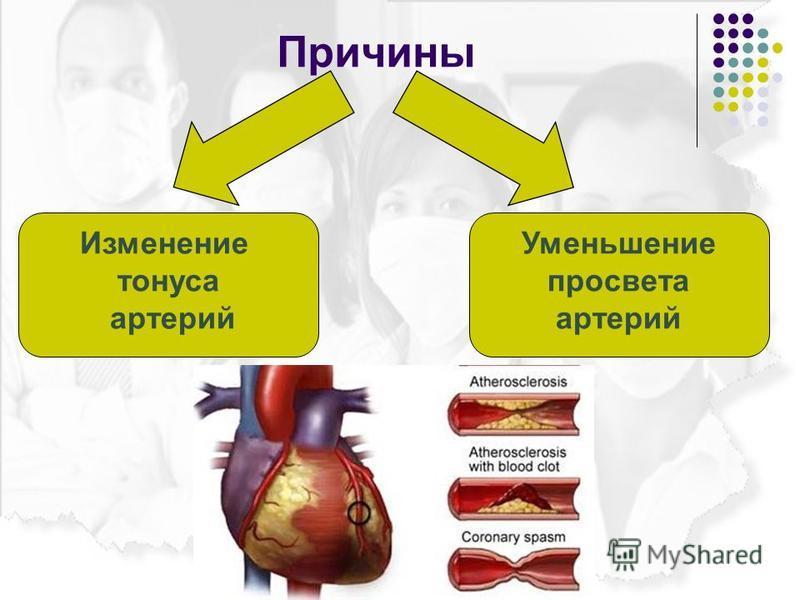 Причины Изменение тонуса артерий Уменьшение просвета артерий