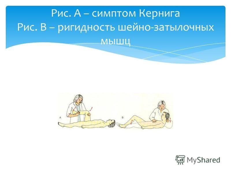 Рис. А – симптом Кернига Рис. В – ригидность шейно-затылочных мышц