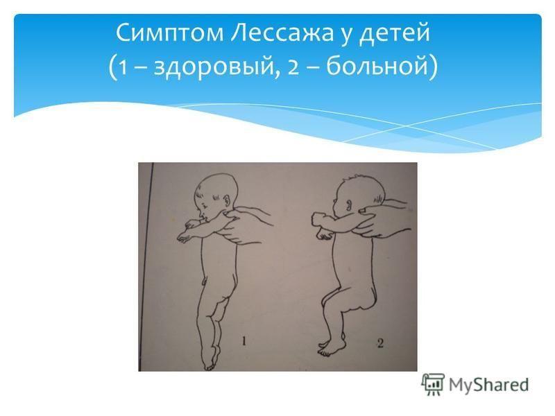 Симптом Лессажа у детей (1 – здоровый, 2 – больной)