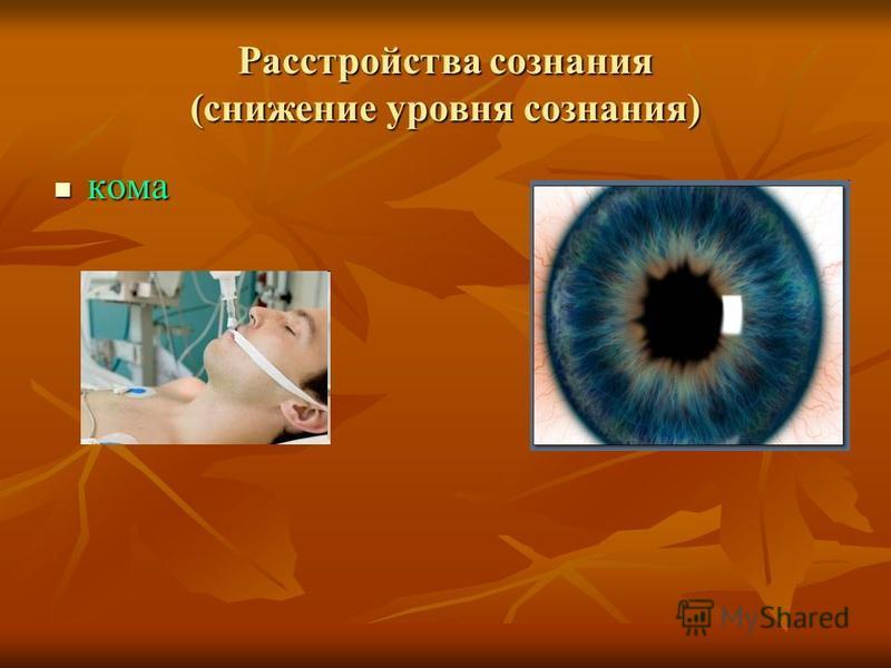 Расстройства сознания (снижение уровня сознания) кома кома