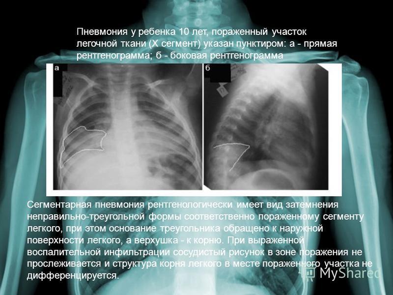 Сегментарная пневмония рентгенологически имеет вид затемнения неправильно-треугольной формы соответственно пораженному сегменту легкого, при этом основание треугольника обращено к наружной поверхности легкого, а верхушка - к корню. При выраженной вос